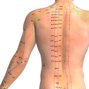 akupunktūra nuo nugaros skausmo