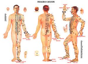 akupunktūros procedūra