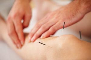 akupunktūra gydomos ligos