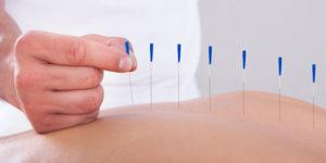 akupunktūra vilniuje
