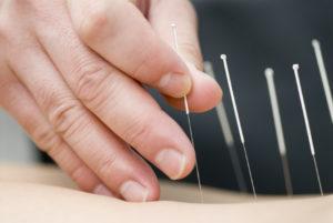 gydymas akupunktura
